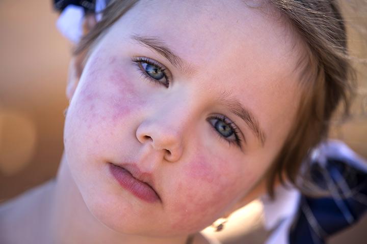 Sobre a síndrome da bochecha tapa