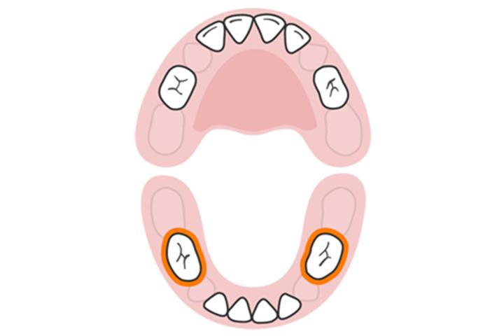 Os primeiros molares (inferiores)