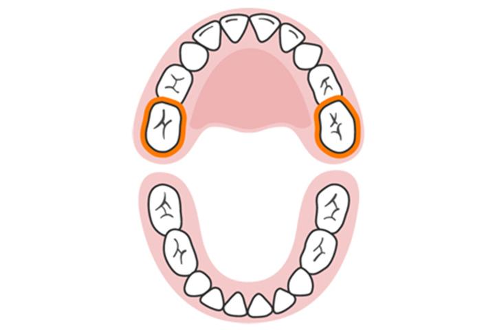 Segundos molares (superiores)