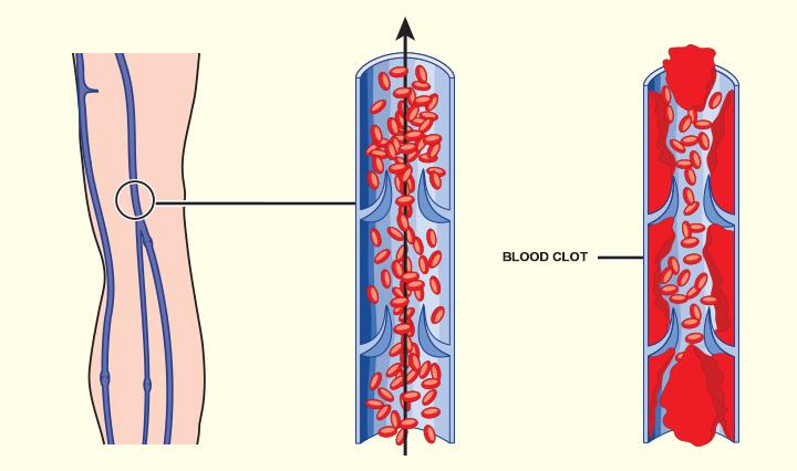 Causas de coágulo sanguíneo durante a gravidez
