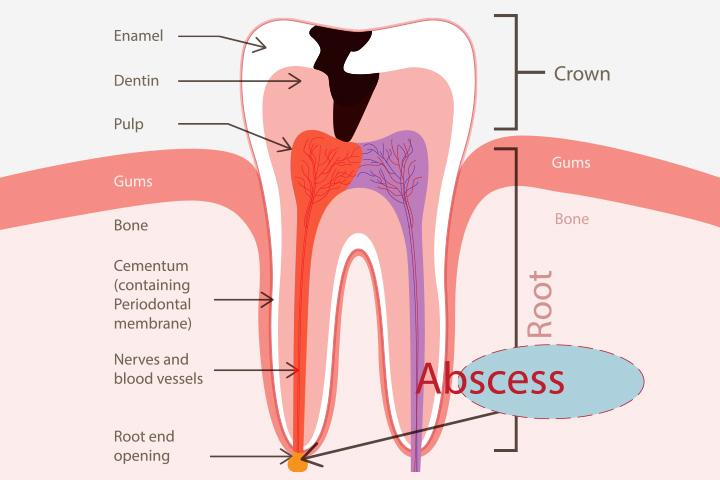 Abscesso dentário durante a gravidez