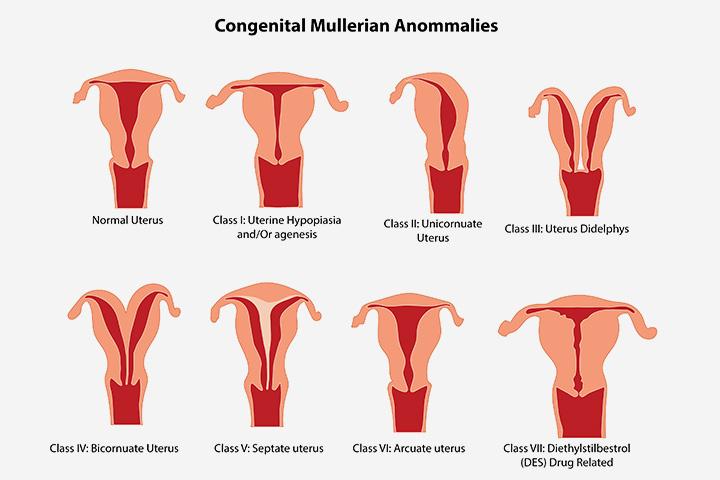 Anormalidades uterinas