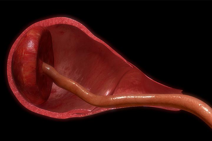 Comer placenta pode colocar seu bebê recém-nascido em risco, diz CDC