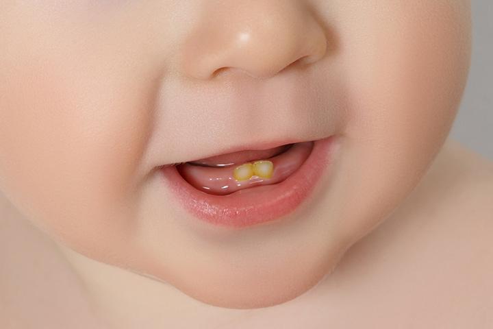 Descoloração dos dentes