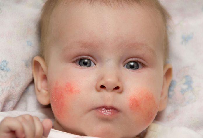 Erupção cutânea do bebê: tipos, causas e tratamento