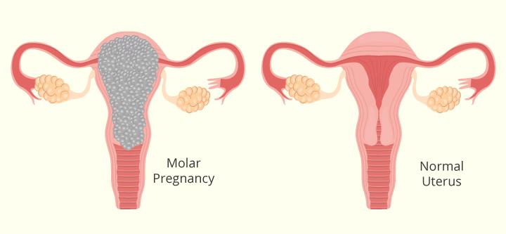 Sintomas, causas e tratamento da gravidez molar