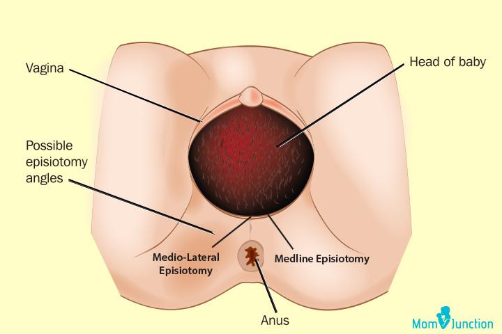 O que é uma episiotomia e como cuidar após o parto?