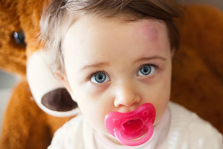 O que fazer quando seu bebê é atingido na cabeça