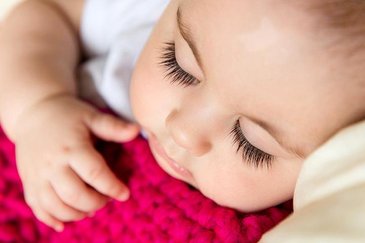 Vitiligo em bebês
