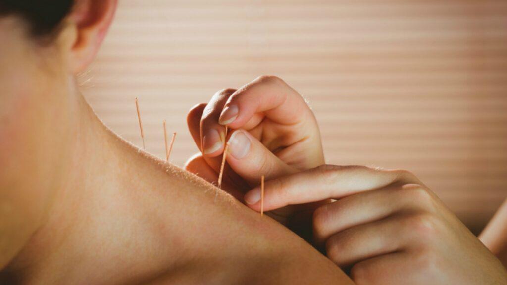 Novo estudo lança luz sobre o impacto da acupuntura na fertilização in vitro