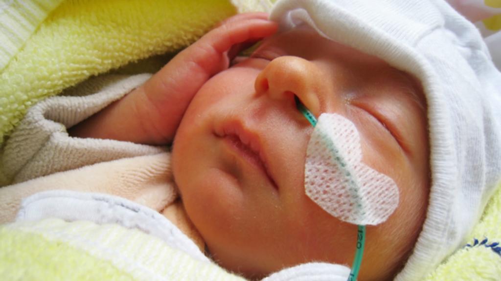 Cientistas descobriram que o leite materno pode ajudar prematuros com lesões cerebrais