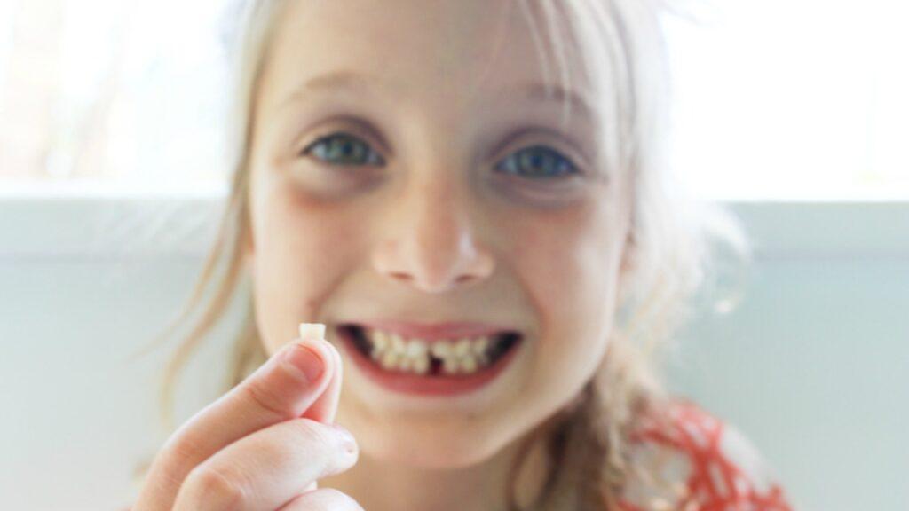Por que alguns pais estão salvando os dentes de leite de seus filhos nos bancos dos dentes